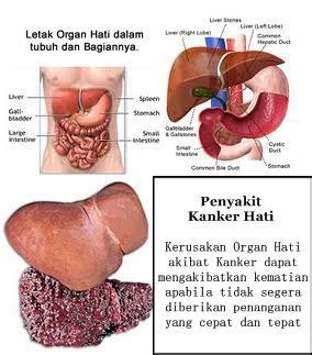 Penyembuhan Kanker Hati Herbal Alami Herbal Essence obat kanker hati alami tanpa operasi rafa herbal