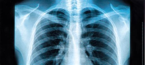 How To Detox From Xray by 47 Radioactive Facts About X Rays Factretriever