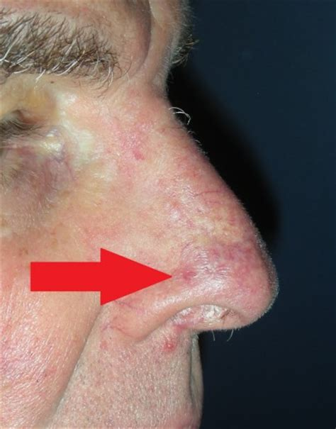 nose cancer skin cancer nose with local flap repair