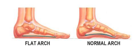 flat foot treatment shoes flat treatment california chiropractic dubai