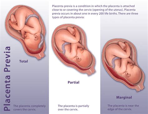 low lying placenta c section image gallery placenta previa