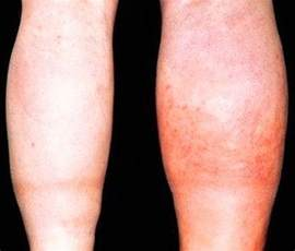 clot in leg treatment at home clot symptoms in leg pictures oasis fashion