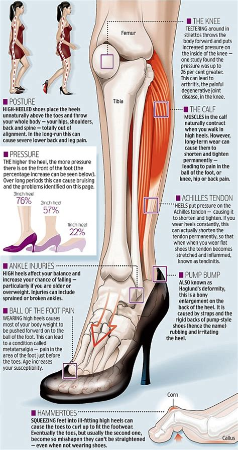 high heel horrors the cost to your of those