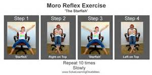 Curl Up Chair Retained Moro Reflex Solve Learning Disabilities