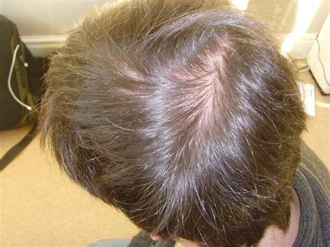 best haircuts for hir loss on crown thinning crown www pixshark com images galleries with