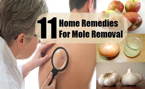 11 home remedies for mole removal treatments
