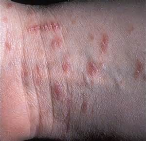 las vegas nv bed bug extermination pest canine