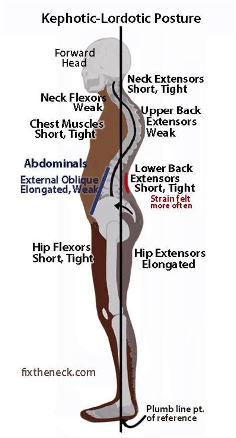 hip  pain images  pinterest physical