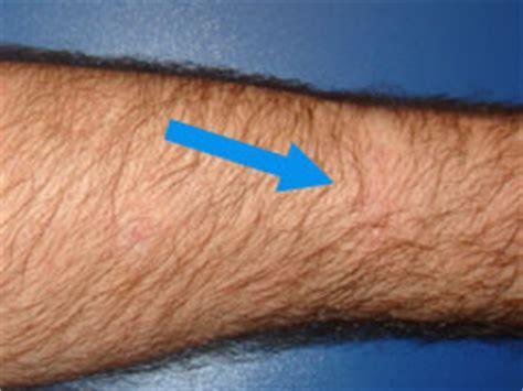 scar revision testimonial reviews