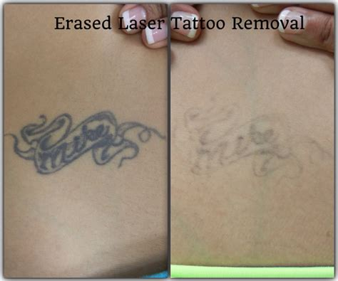 after the 5th treatment erased tattoo removal las vegas before after erased laser tattoo removal