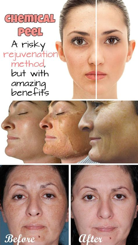 light chemical peel benefits 14 best images about chemical peels on pinterest skin