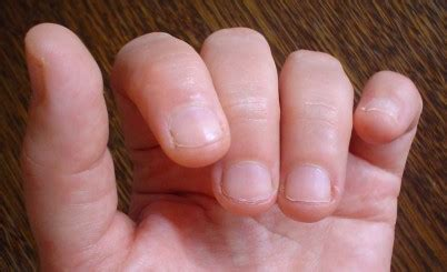 Do You Bite Your Nails by 22 Fast And Easy Ways To Stop Biting Your Nails