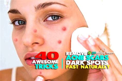 remove acne scars remove acne scars dark spots fast 40 best natural home