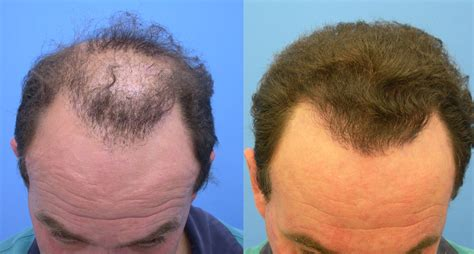 Hair Transplant Stories And Patient Testimonials | hair transplant stories and patient testimonials hair