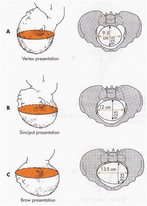 1 diameter floor leveler entering pelvis biparietal diameter is indicated