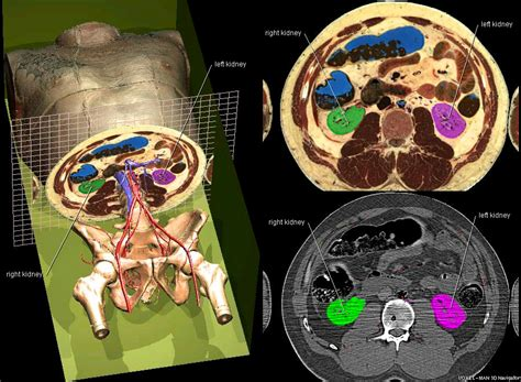 cross sectional anatomy quiz exle scene correlation of ct with 3d and cross
