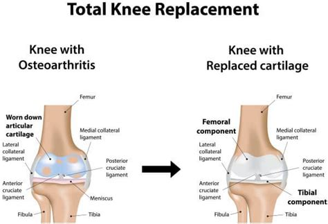 total knee replacement diagram total knee replacement knee surgery oa knee