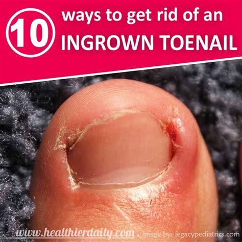 how can you get rid of ingrown hair on private place how to get rid of an infected ingrown hair inner thigh 112