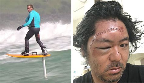 hydrofoil board behind boat when a hydrofoil hits you in the face the inertia