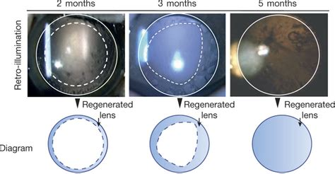 eye lens scientists grow eye lens from patients own stem cells