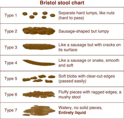 Constipation Stool Chart by 25 Best Ideas About Bristol Stool Scale On