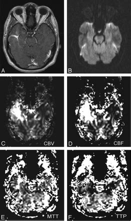 Atypical MR Imaging Perfusion in Developmental Venous