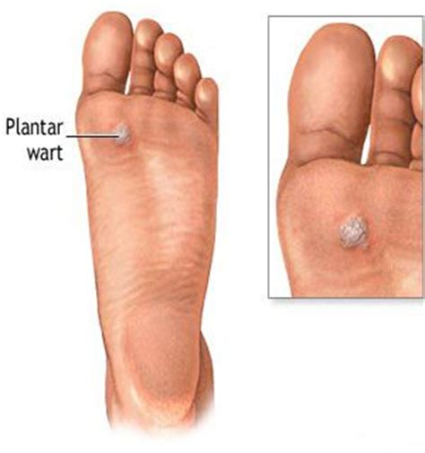 What Causes Planters Wart by 31 Best Images About Best Wart Remover On