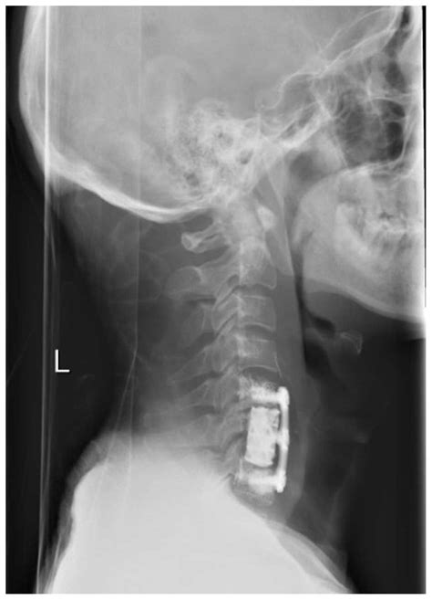 Leiomyosarcoma metastatic to the cervical spine causing a