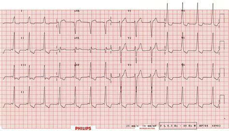 Type B Rvh - pre excitation syndromes litfl library diagnosis