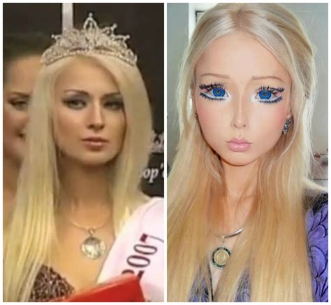 valeria lukyanova plastic surgery before after breast