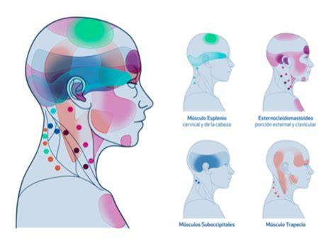 mal di testa tempie cefalea tensiva e emicrania come curarle col metodo ams