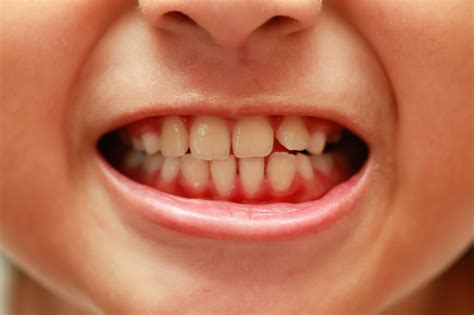 teeth of the how to identify if you sensitive teeth 7 steps