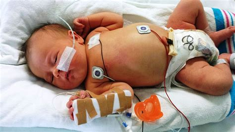 Can Detox Affect Birth by What Happens When A Baby Is Born Addicted To Drugs The