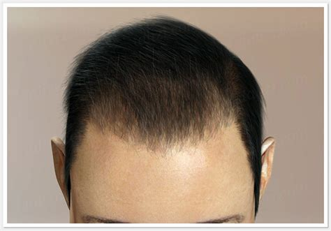 how thick is 1000 hair graft best and affordable hair transplant doctor clinic in
