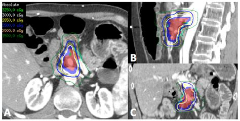 Proton Therapy Pancreatic Cancer by Cancers Free Text Stereotactic Radiotherapy And
