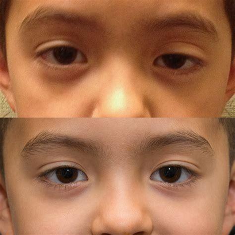 droopy eye utah s eyelid surgery specialists pediatric eyelid problems