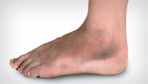 sore legs and after standing swollen ankle and leg causes treatments and more