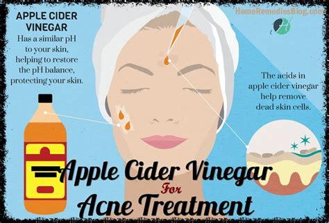 Results Much Apple Cider Vinegar Detox by Apple Cider Vinegar For Acne 13 Ways For Fast Results