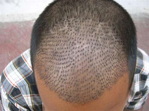 best hair implants technology in hair transplant