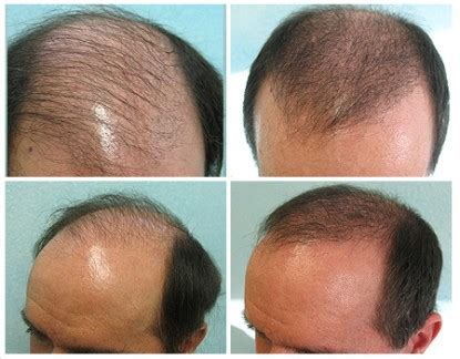 transplant hair from chest to head body hair transplant 3000 grafts bht grafts for norwood 5