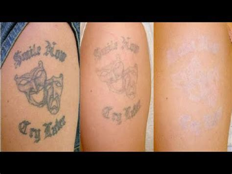 ways to remove a tattoo yourself the cheapest removal you do it yourself at home