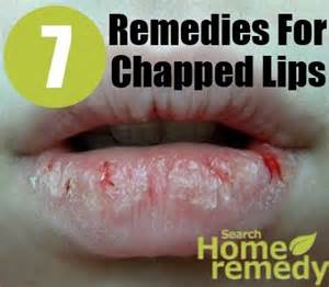 home remedies for chapped 25 best chapped ideas on