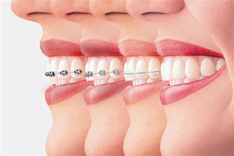 comfort dental braces cost the price of straight teeth yoursmile sg