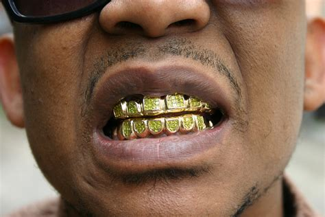 with gold teeth sales of gold teeth increase