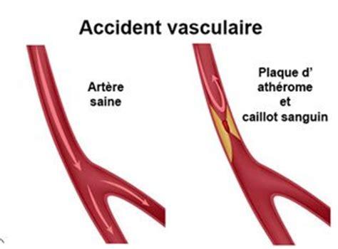 cardio vasculaire d 195 169 finition