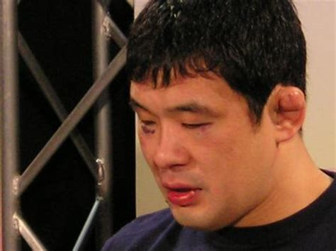 Mimis Jitu how to prevent and treat cauliflower ear in bjj and mma