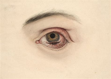 the eye is the l of the eye neoplasm