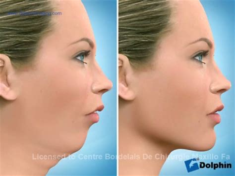 si鑒e v駘o avant chirurgie orthognathique correction de la position des