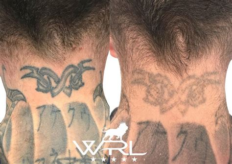 tattoo removal on neck removal neck whiteroom laser ltd