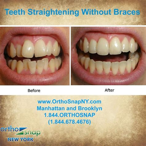 144 best images about straighten teeth without braces on